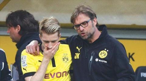Klopp thua nhan kha nang Reus roi Dortmund hinh anh