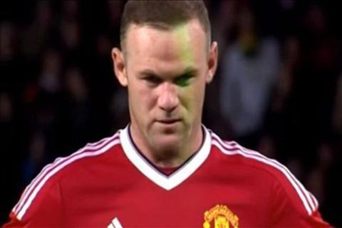 Rooney Laser