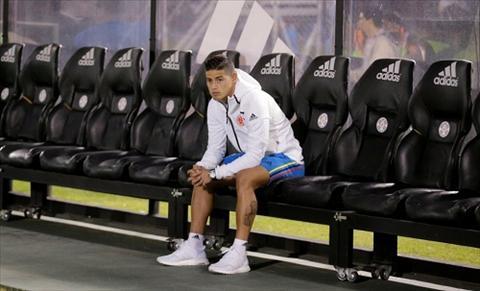 James Rodriguez bi doa giet hinh anh