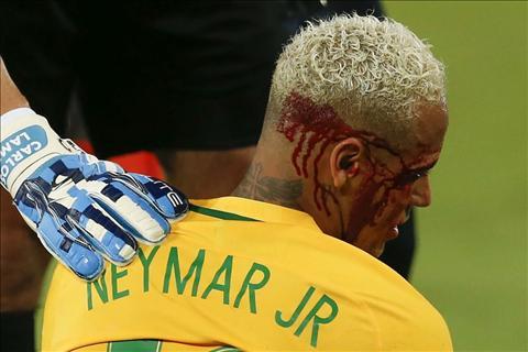 Do te cho Neymar an cui cho Cau ta xung dang bi nhu vay! hinh anh