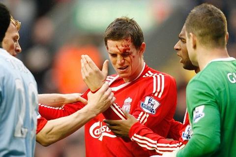 Liverpool nhu que huong thu 2 cua Agger