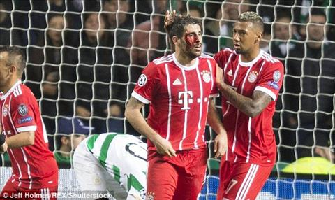 Celtic 1-2 Bayern Munich Thang tray trat, Hum xam chinh thuc co mat o vong 18 hinh anh