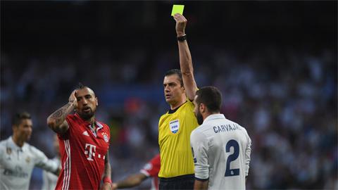 Du am Real 4-2 Bayern Bi kich tien ve Arturo Vidal hinh anh 2