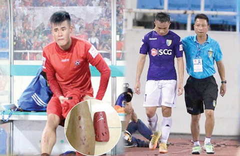Nhung pha bong triet ha kieu Sam Ngoc Duc la van nan cua V-League.