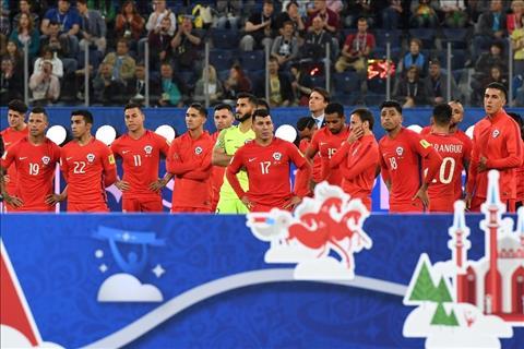 Hau Confed Cup 2017 Chile, Pizzi va su tan hien hinh anh 3