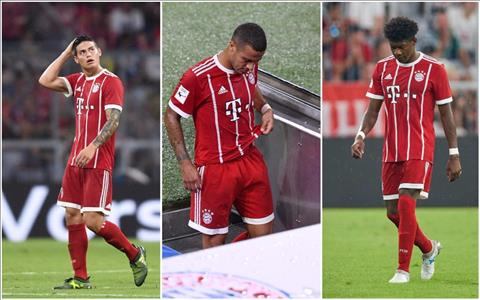 Tien ve James Rodriguez da dinh chan thuong hinh anh 2