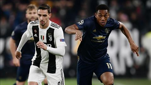 Tiền đạo Martial là điểm sáng duy nhất của MU trước Juve hình ảnh