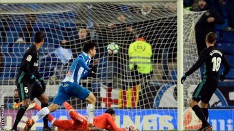 HLV Zidane noi gi sau that bai cay dang truoc Espanyol hinh anh