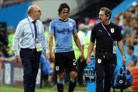 Những dự đoán hợp thời cho trận cầu sớm Pháp vs Uruguay hình ảnh 2