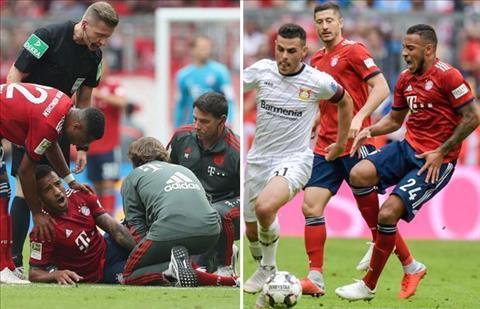 Niko Kovac phát biểu về Bayern Munich và chấn thương hình ảnh