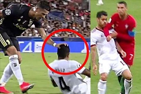 Ronaldo xau choi