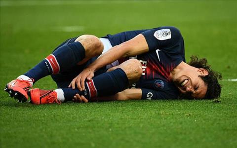 Edinson Cavani dính chấn thương và dự kiến sẽ bỏ lỡ trận vs MU hình ảnh