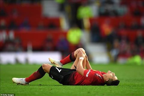 Alexis Sanchez chấn thương Có nguy cơ nghỉ hai tháng hình ảnh