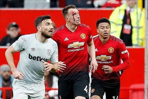 Phil Jones đổ máu trong trận thắng West Ham hình ảnh
