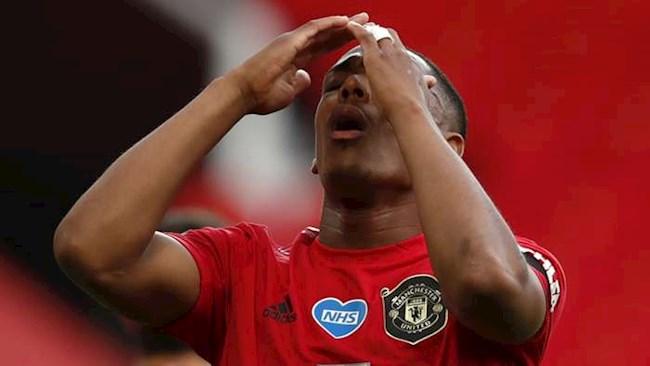 MU không thể giành danh hiệu nếu Martial vẫn là tiền đạo cắm hình ảnh