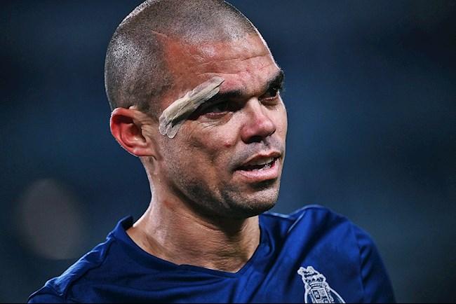 Pepe - Còn thở là còn bảo vệ khung thành