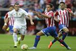 """Vấn đề của Real: James phải đá chính, Bale cần bị """"trảm"""""""