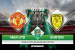 TRỰC TIẾP MU 3-0 Burton (H2): Chiến thắng quá dễ dàng