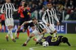 Massimiliano Allegri tiec vi Juventus khong the ha sat Tottenham
